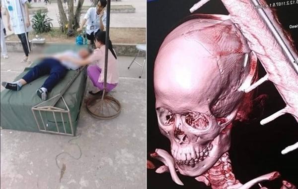 Nam sinh lớp 6 bị cọc nhảy cao đâm trúng đầu phải ghép xương sọ-1