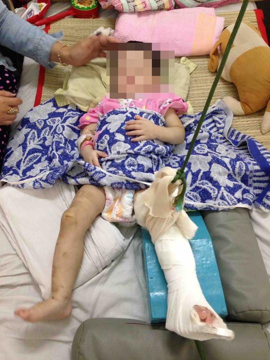 Mẹ nuôi đánh bé gái 1 tuổi đến gãy chân chỉ vì biếng ăn, hay khóc-1