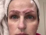TP.HCM: Xăm chân mày tại một cơ sở thẩm mỹ một bệnh nhân nữ nhập viện tình trạng hôn mê, ngừng hô hấp-3
