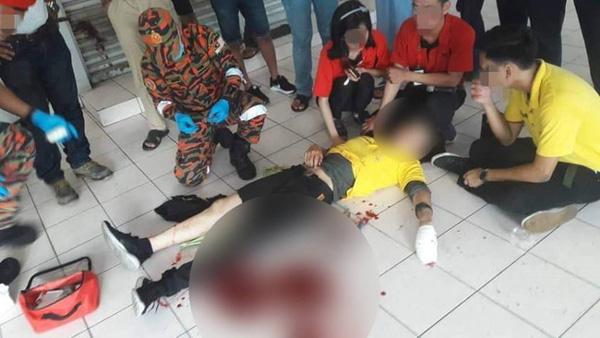 Chụp ảnh tự sướng trong nhà hàng, thanh niên bị đánh chí tử vì lý do không ai ngờ đến-2