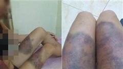 Cô gái mang thai 6 tháng tuổi bị bắt cóc, tra tấn khiến thai nhi tử vong ở Sài Gòn-1