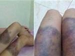 Thông tin sốc vụ thai phụ 18 tuổi bị giam, tra tấn khiến thai nhi tử vong-3