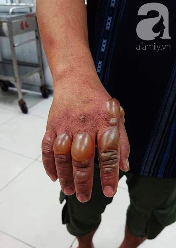 TP.HCM: Thương vợ bỏng nặng, chồng đau đớn đòi bán thận lo tiền cứu vợ-3