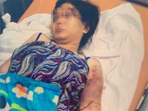 Nghi can khai sử dụng ma túy trước khi tra tấn cô gái trẻ ở TP.HCM đến sẩy thai
