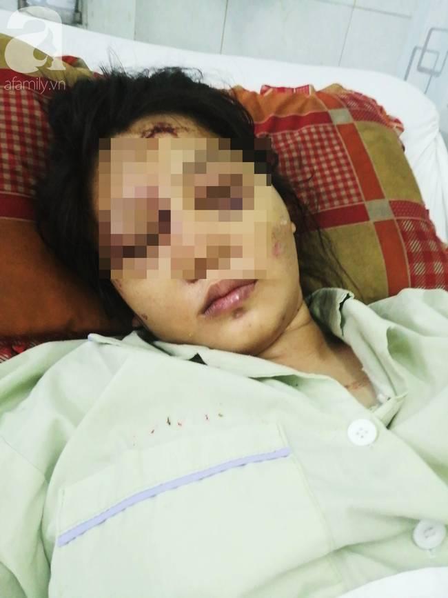 Cô gái mang bầu 6 tháng bị bắt cóc, tra tấn đến sảy thai bị sang chấn tâm lý, la hét, kích động trong bệnh viện-1