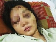 Cô gái mang bầu 6 tháng bị bắt cóc, tra tấn đến sảy thai bị sang chấn tâm lý, la hét, kích động trong bệnh viện