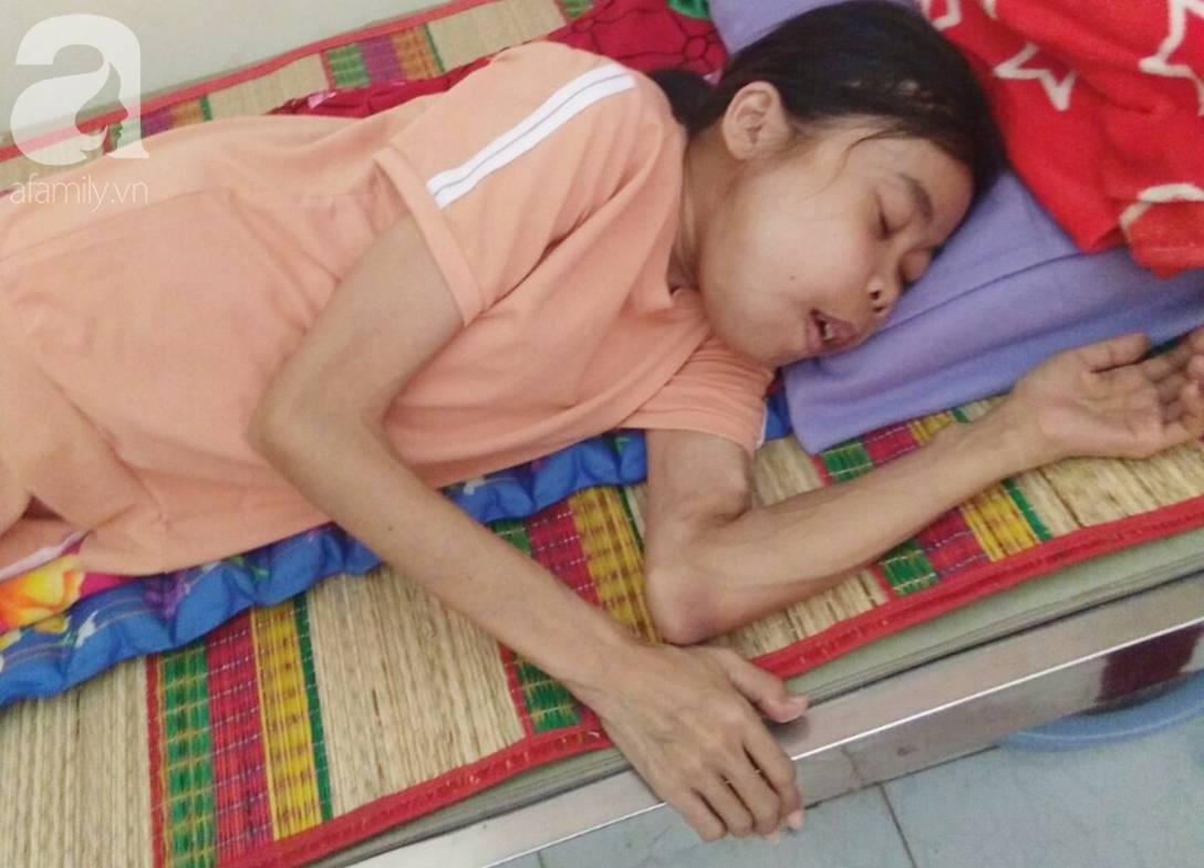 Bị suy thận nhưng vẫn cố giữ thai nhi, người mẹ bị biến dạng khuôn mặt, chấp nhận chết để con gái nhỏ được chào đời-5