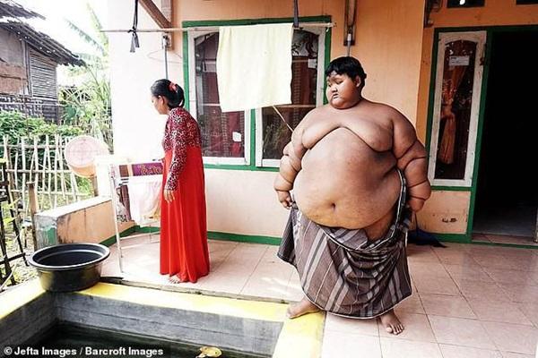 Bé trai nặng 190kg đổi đời khi giảm 104kg nhưng thân hình hiện tại vẫn gây sốc-6