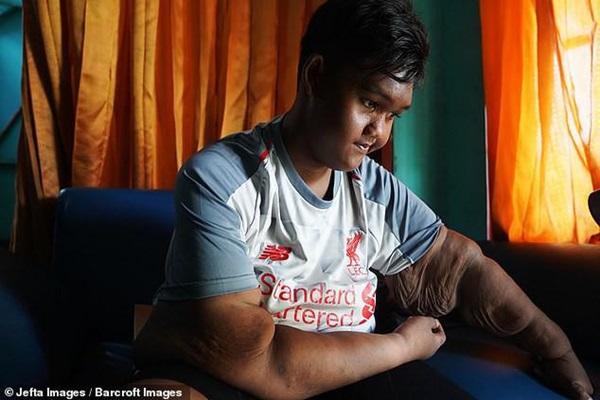 Bé trai nặng 190kg đổi đời khi giảm 104kg nhưng thân hình hiện tại vẫn gây sốc-16