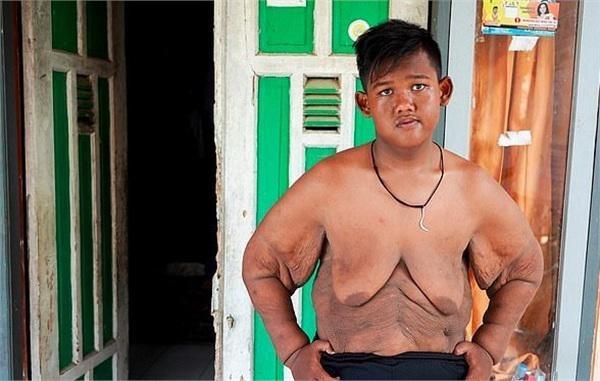 Bé trai nặng 190kg đổi đời khi giảm 104kg nhưng thân hình hiện tại vẫn gây sốc-9