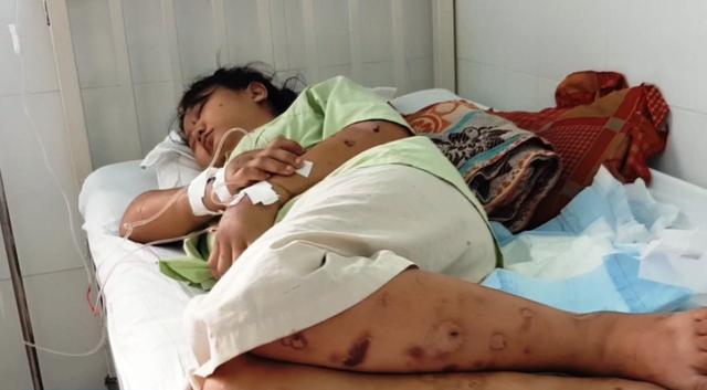 Thai phụ bị giam giữ, tra tấn đến sảy thai ở Sài Gòn: Chỉ vì hơn 1 triệu đồng sao mà tàn ác với nhau thế-1