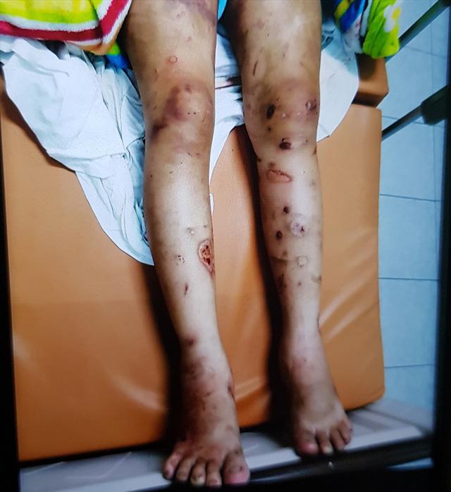 Thai phụ bị giam giữ, tra tấn đến sảy thai ở Sài Gòn: Chỉ vì hơn 1 triệu đồng sao mà tàn ác với nhau thế-2