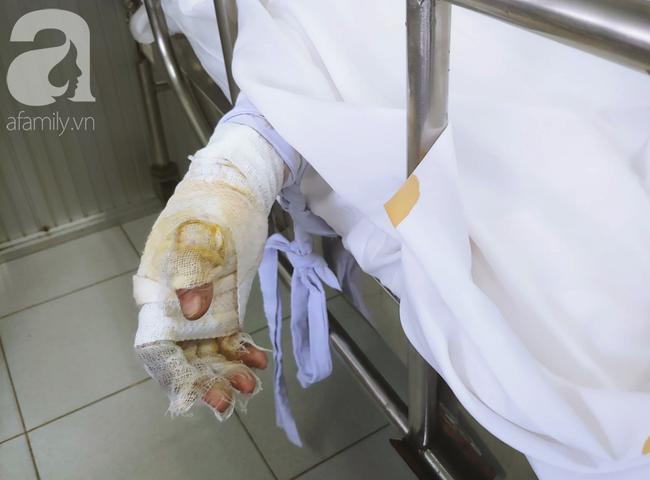 Vụ người phụ nữ nghi dùng xăng đốt chồng rồi tự thiêu: Người chồng liên tục gọi vợ trong phòng chăm sóc đặc biệt-4