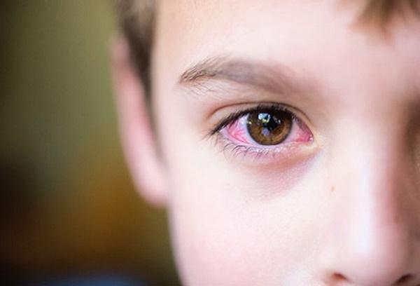 Đau mắt đỏ: Bệnh dễ gặp khi thời tiết sắp chuyển sang nóng bức-1