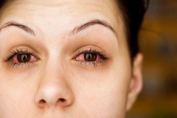 Đau mắt đỏ: Bệnh dễ gặp khi thời tiết sắp chuyển sang nóng bức-2