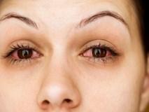 Đau mắt đỏ: Bệnh dễ gặp khi thời tiết sắp chuyển sang nóng bức