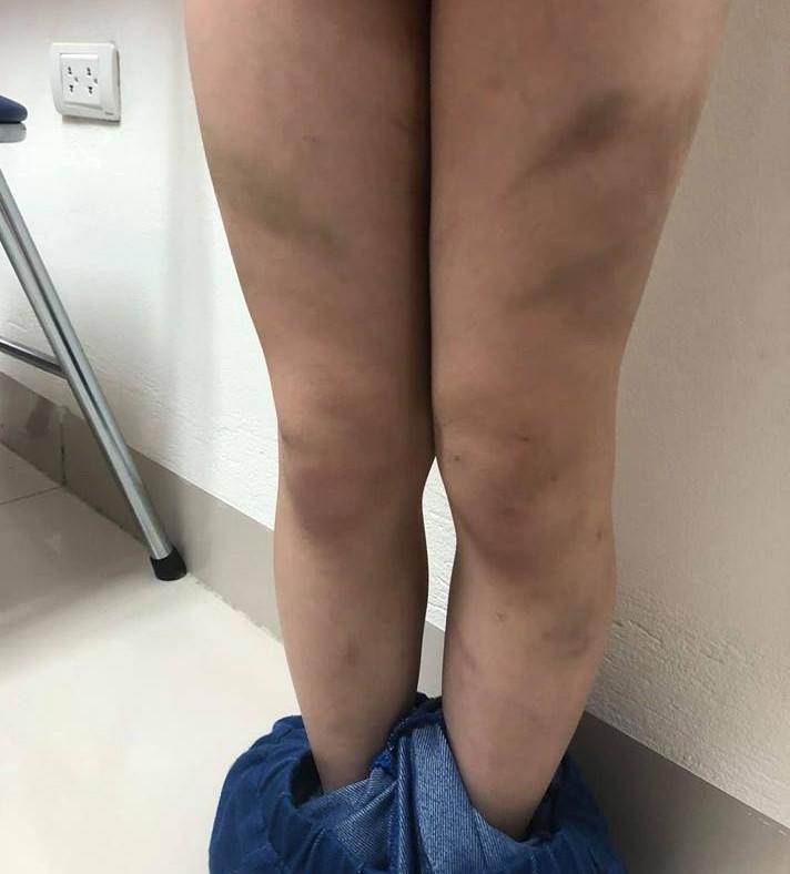 Mẹ ruột tố con trai lớp 1 bị mẹ kế bạo hành bằng dép và gậy khiến bé bầm tím cả người-2