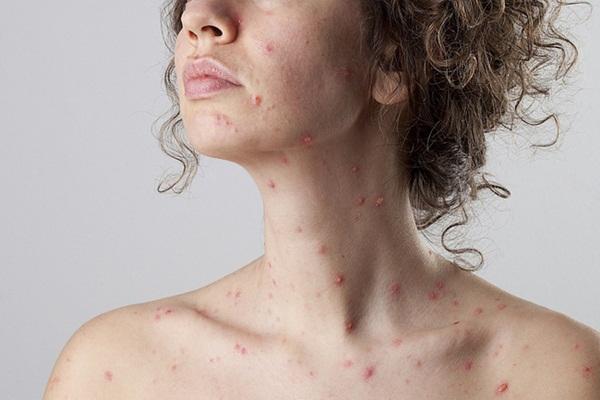 Nữ tiếp viên hàng không rơi vào tình trạng hôn mê 10 ngày do biến chứng đáng sợ của bệnh sởi-1