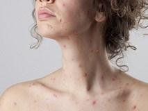 Nữ tiếp viên hàng không rơi vào tình trạng hôn mê 10 ngày do biến chứng đáng sợ của bệnh sởi