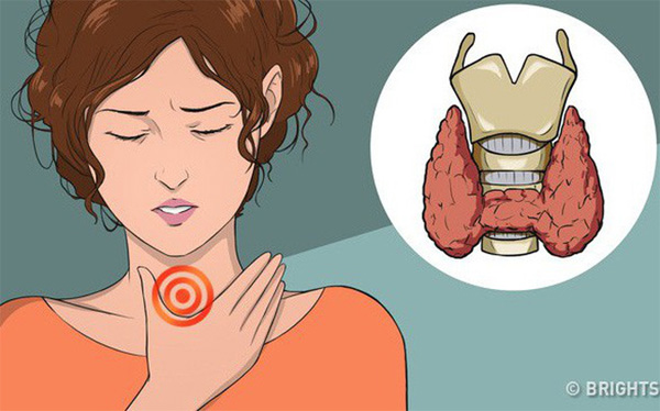 11 dấu hiệu cảnh báo bệnh tuyến giáp: Nếu không chú ý can thiệp sớm sẽ rất nguy hiểm-1