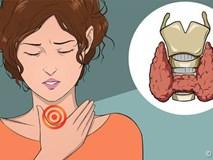 11 dấu hiệu cảnh báo bệnh tuyến giáp: Nếu không chú ý can thiệp sớm sẽ rất nguy hiểm