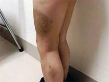 Bé 7 tuổi bị bố bạo hành: Người mẹ đau đớn gửi đơn đến BV Việt Đức