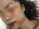 Chị ruột cô gái bị tấn công phải khâu 60 mũi: Mặt em tôi bị rạch như thế thì coi như hết đời người rồi-5
