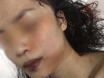 Bắc Ninh: Cô gái 18 tuổi bị bạn cũ lao vào phòng rạch mặt, cổ và tay, phải khâu 60 mũi