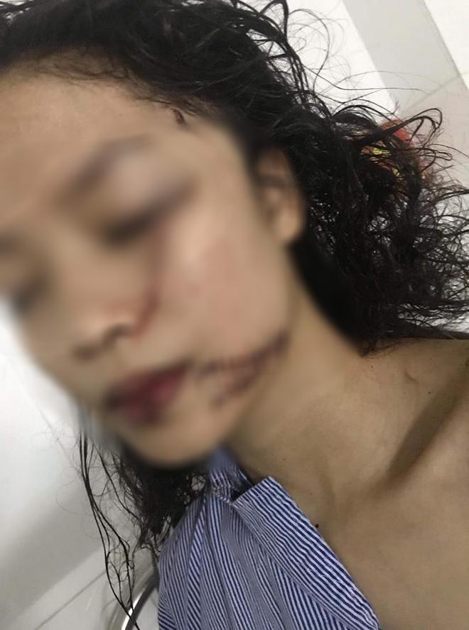 Chị ruột cô gái bị tấn công phải khâu 60 mũi: Mặt em tôi bị rạch như thế thì coi như hết đời người rồi-1