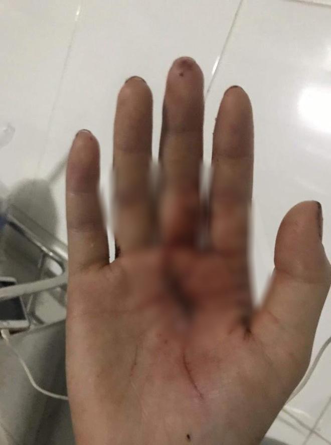 Chị ruột cô gái bị tấn công phải khâu 60 mũi: Mặt em tôi bị rạch như thế thì coi như hết đời người rồi-4