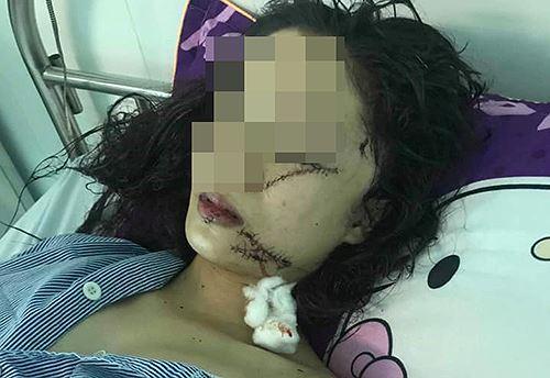 Vụ thiếu nữ 18 tuổi xinh đẹp bị 3 người rạch mặt: Hé lộ nguyên nhân bi kịch-1