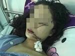 """Chị gái thiếu nữ xinh đẹp bị rạch mặt: Em tôi kêu có thai mà họ vẫn không tha""""-3"""