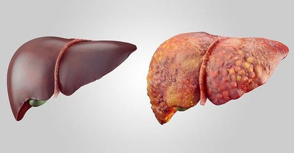 Đây là những trường hợp có nguy cơ mắc bệnh ung thư gan rất cao, số 3 nhiều người mắc phải-2