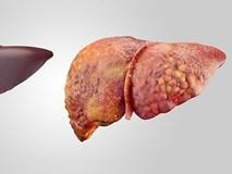 Đây là những trường hợp có nguy cơ mắc bệnh ung thư gan rất cao, số 3 nhiều người mắc phải
