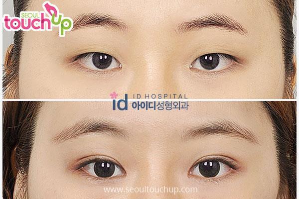 9 xu hướng phẫu thuật thẩm mỹ phổ biến nhất ở Hàn Quốc-1