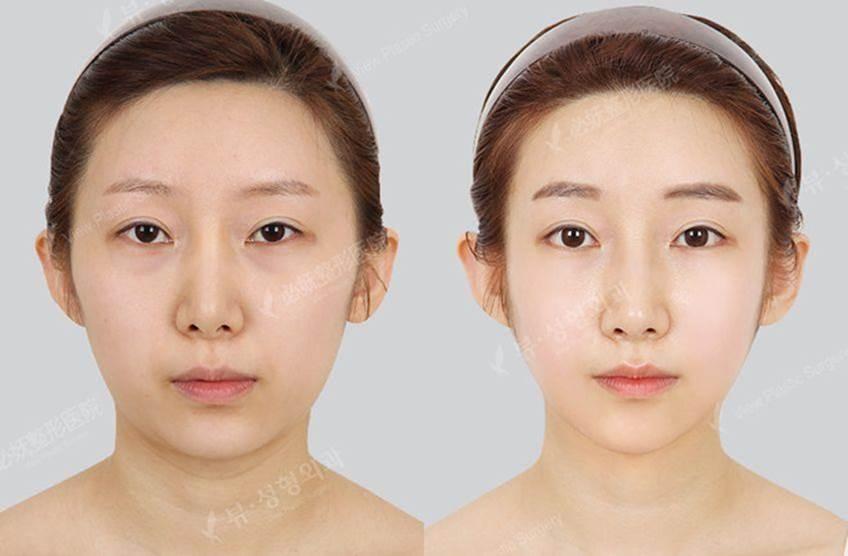 9 xu hướng phẫu thuật thẩm mỹ phổ biến nhất ở Hàn Quốc-3