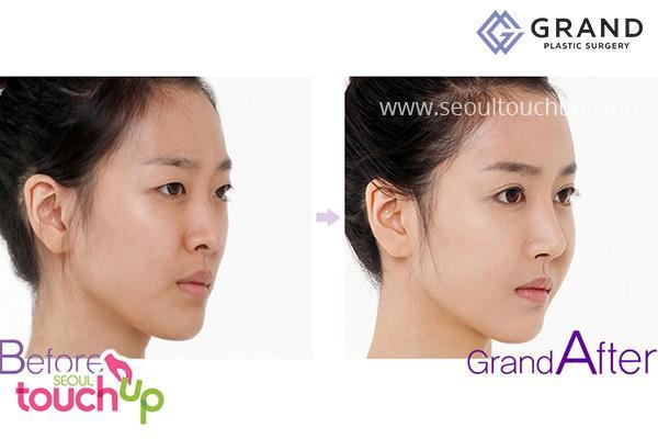 9 xu hướng phẫu thuật thẩm mỹ phổ biến nhất ở Hàn Quốc-4