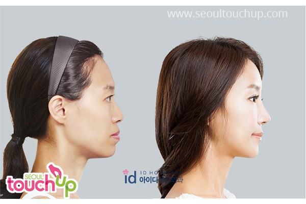 9 xu hướng phẫu thuật thẩm mỹ phổ biến nhất ở Hàn Quốc-5