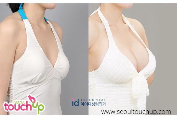 9 xu hướng phẫu thuật thẩm mỹ phổ biến nhất ở Hàn Quốc-9