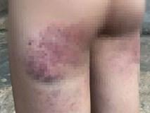 Cô giáo bị tố đánh học sinh lớp 4 bầm tím người do không làm được bài