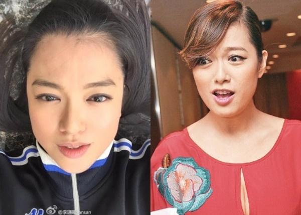 Lý San San: Hoa hậu tam nhất Hong Kong đột ngột mất tích với bệnh u não và câu trả lời vào 8 năm sau khiến mọi người bất ngờ-6