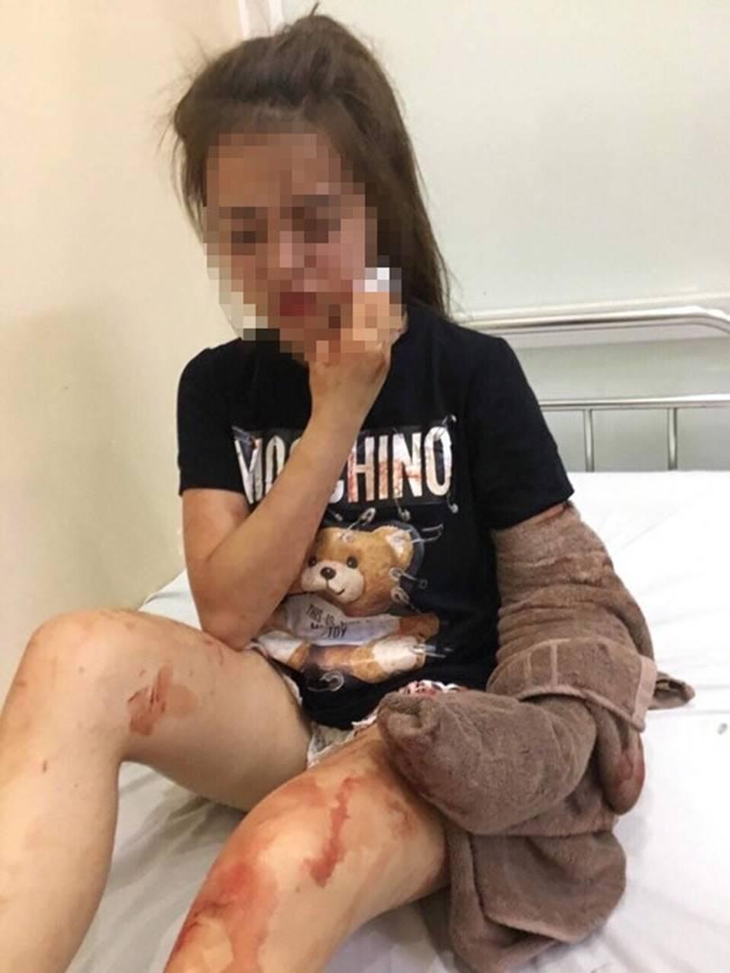 Nghe tin con gái rạch mặt người khác, mẹ ngã gục tại bệnh viện-