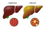 4 dấu hiệu sau khi uống rượu chứng tỏ gan đang tổn thương nghiêm trọng-4