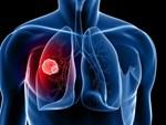 Ngoài thuốc lá thì đây chính là những nguyên nhân không ngờ gây nên bệnh ung thư phổi mà nghệ sĩ Lê Bình phải chống trọi trong thời gian dài-3