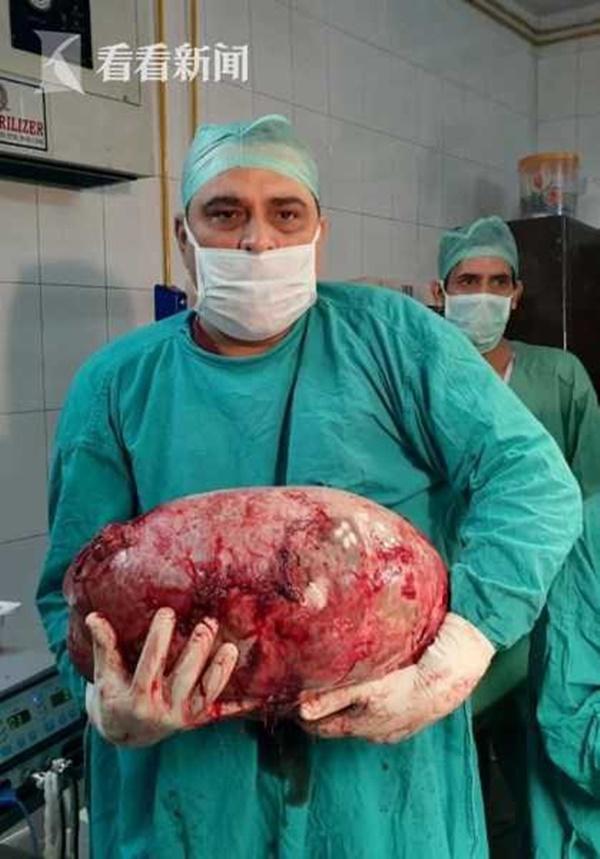 Cô gái 16 tuổi bị ngừng kinh, đau bụng dữ dội phải đi khám, thứ bác sĩ lấy ra từ bụng cô mới gây giật mình-1