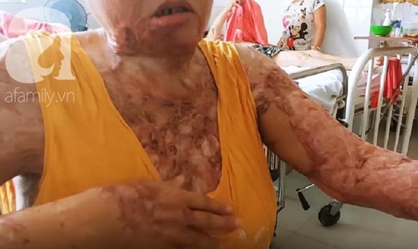 Người phụ nữ bị tình cũ tạt axit bỏng nặng sau khi níu kéo tình cảm không thành-4