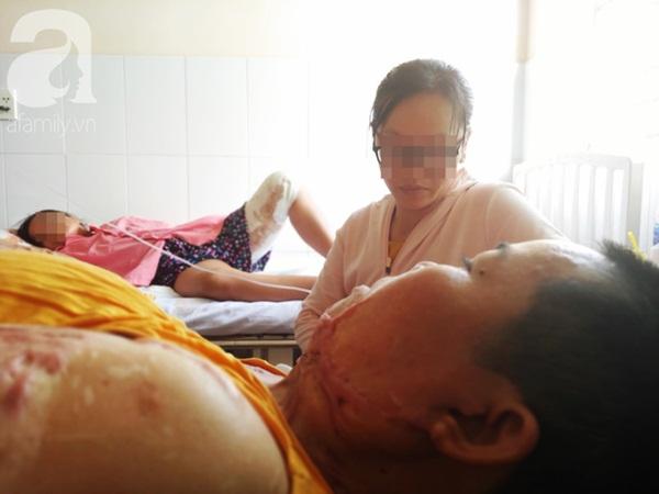 Người phụ nữ bị tình cũ tạt axit bỏng nặng sau khi níu kéo tình cảm không thành-7
