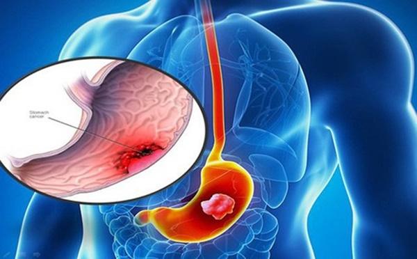 Thiếu nữ 18 tuổi đau bụng nhẹ đi khám phát hiện ung thư dạ dày giai đoạn cuối-1