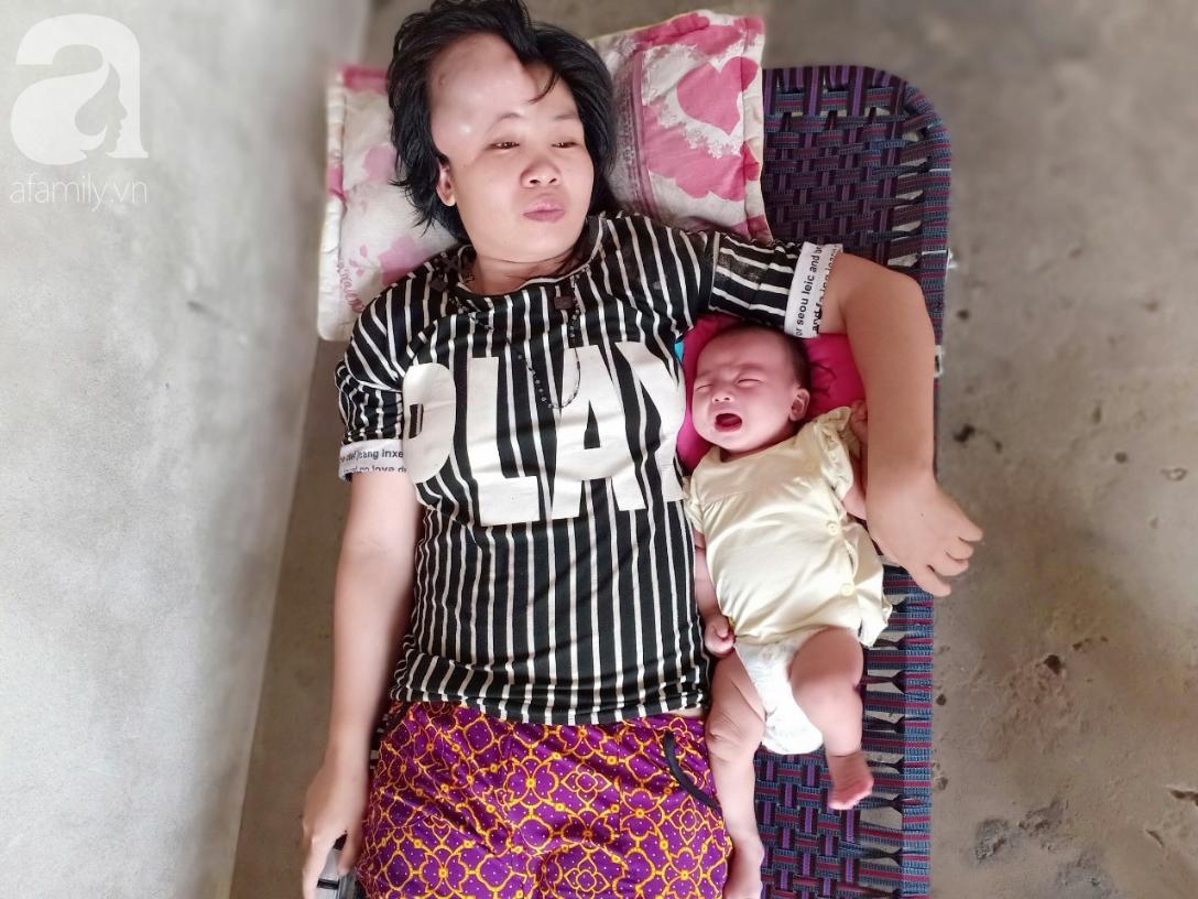 Người mẹ mang khối u khổng lồ, giành giật sự sống từng ngày để sinh con: Em muốn nhìn con lớn một chút nữa rồi chết-1