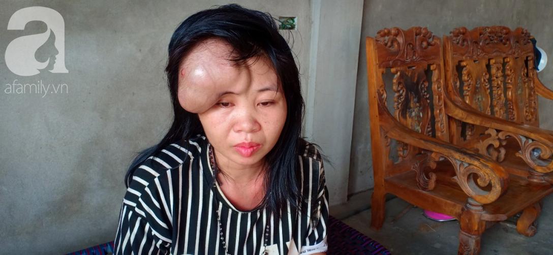 Người mẹ mang khối u khổng lồ, giành giật sự sống từng ngày để sinh con: Em muốn nhìn con lớn một chút nữa rồi chết-5
